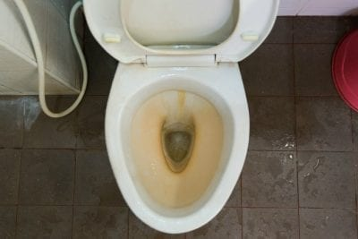 Pumice Stones, Dirty Toilet With Ring